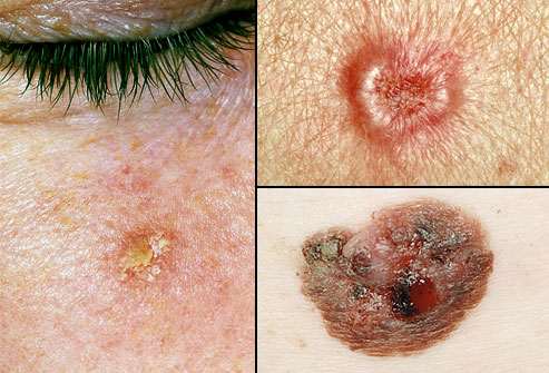 Skin cancer growths www.mytributejournal.com